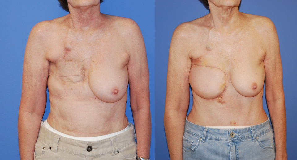 breast removal after radiation