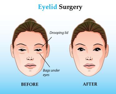 Blepharoplasty Candidate Eyelid Surgery Istanbul Turkey